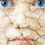 dry-skin-image